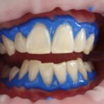 Tips That Will Help You Get Some Whiter Teeth